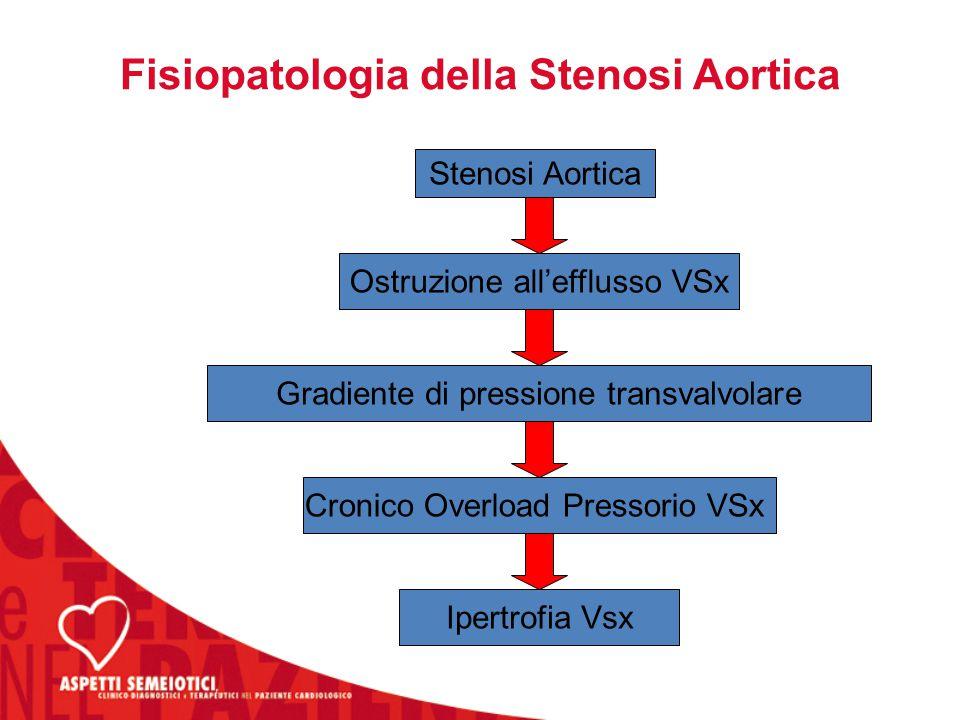 Fisiopatologia della Stenosi Aortica Stenosi Aortica Ostruzione all'efflusso VSx Cronico Overload Pressorio VSx Ipertrofia Vsx Gradiente di pressione transvalvolare
