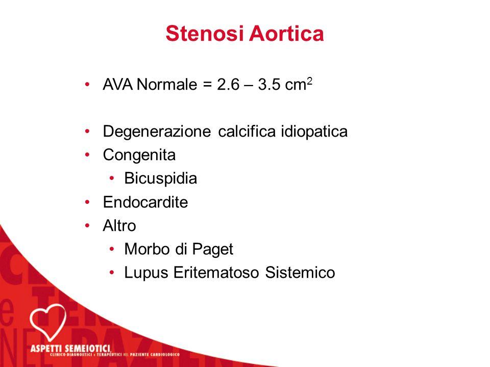 Stenosi Aortica AVA Normale = 2.6 – 3.5 cm 2 Degenerazione calcifica idiopatica Congenita Bicuspidia Endocardite Altro Morbo di Paget Lupus Eritematoso Sistemico