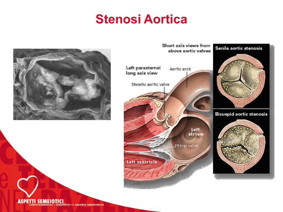 Storia Naturale della Stenosi Aortica Può sussistere un lungo periodo (anche decadi) di asintomaticità (in questa fase il rischio di morte improvvisa è molto basso) La progressione della stenosi è pari a circa 0-0.3 cm 2 /yr.