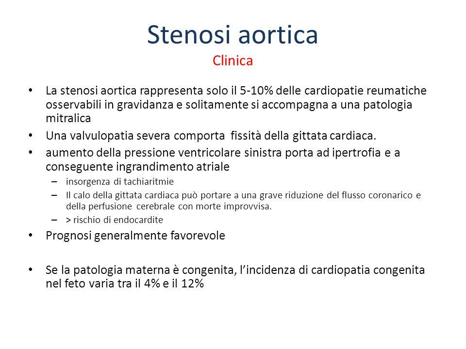 Stenosi aortica Clinica La stenosi aortica rappresenta solo il 5-10% delle cardiopatie reumatiche osservabili in gravidanza e solitamente si accompagn