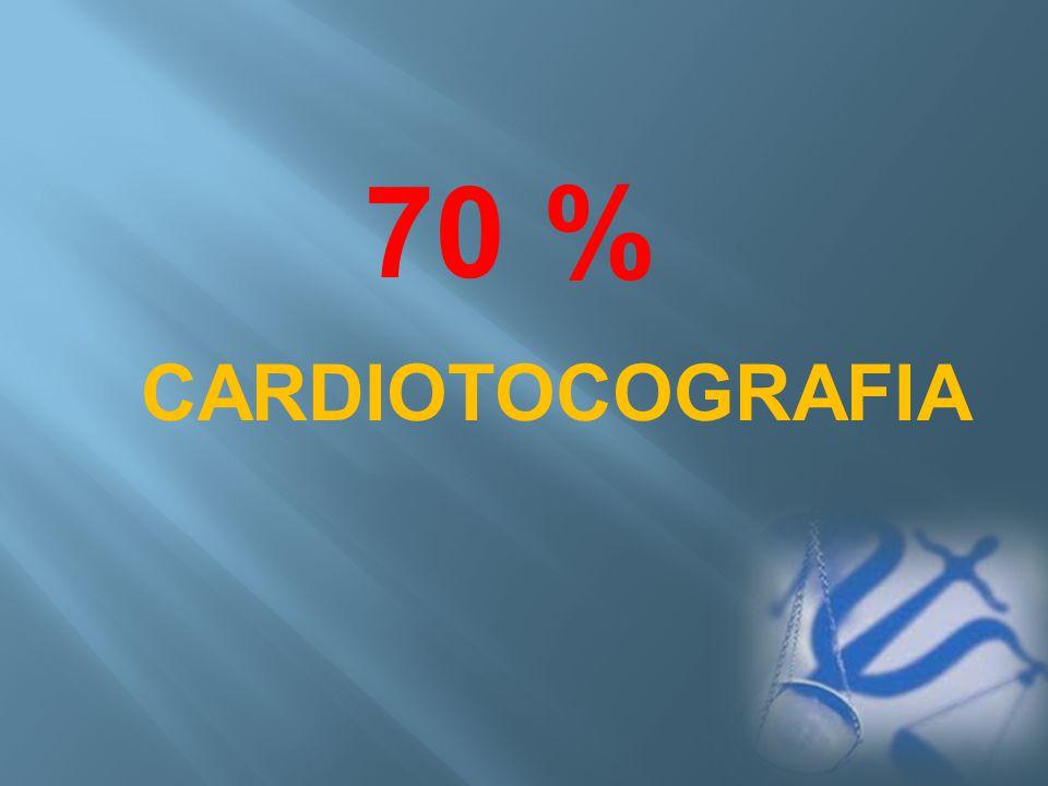 CARDIOTOCOGRAFIA 70 %