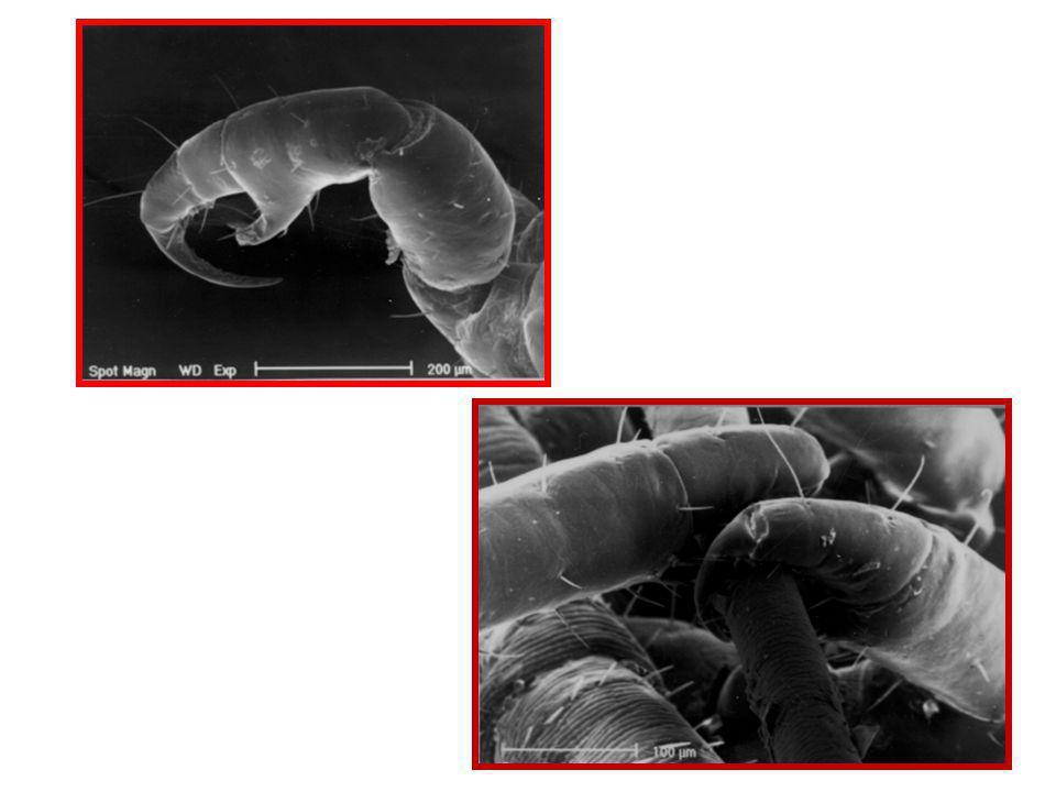 Uova o Lendini Vuote: sono trasparenti e prive di cappuccio ( senza opercolo ) Assomigliano alla forfora ma da questa si distinguono facilmente perché ben fissate ai capelli.
