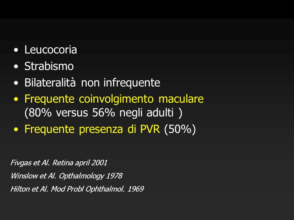 Leucocoria Strabismo Bilateralità non infrequente Frequente coinvolgimento maculare (80% versus 56% negli adulti ) Frequente presenza di PVR (50%) Fiv