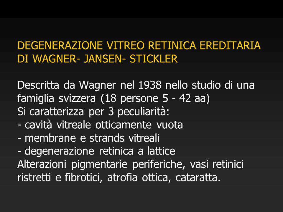 DEGENERAZIONE VITREO RETINICA EREDITARIA DI WAGNER- JANSEN- STICKLER Descritta da Wagner nel 1938 nello studio di una famiglia svizzera (18 persone 5