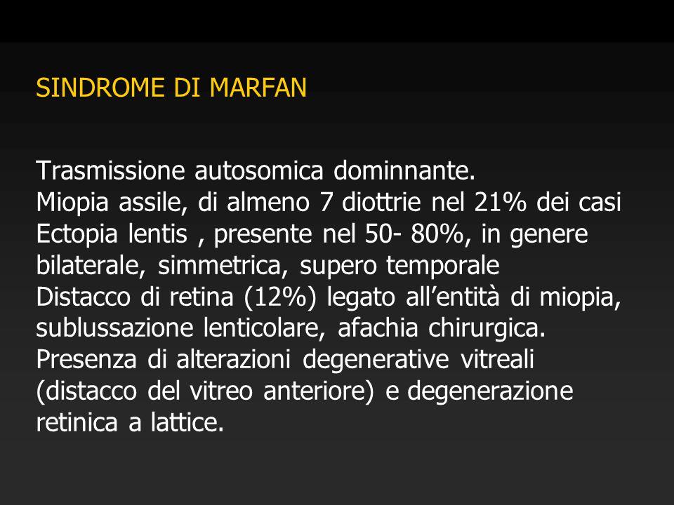 SINDROME DI MARFAN Trasmissione autosomica dominnante. Miopia assile, di almeno 7 diottrie nel 21% dei casi Ectopia lentis, presente nel 50- 80%, in g