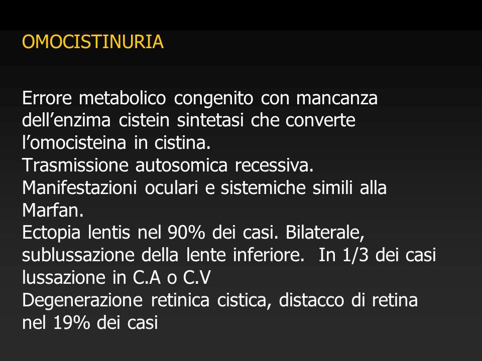 OMOCISTINURIA Errore metabolico congenito con mancanza dell'enzima cistein sintetasi che converte l'omocisteina in cistina. Trasmissione autosomica re