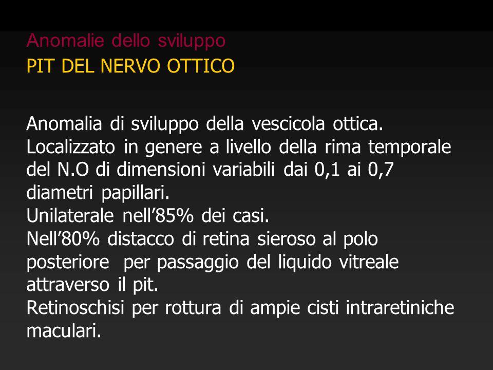 PIT DEL NERVO OTTICO Anomalia di sviluppo della vescicola ottica. Localizzato in genere a livello della rima temporale del N.O di dimensioni variabili