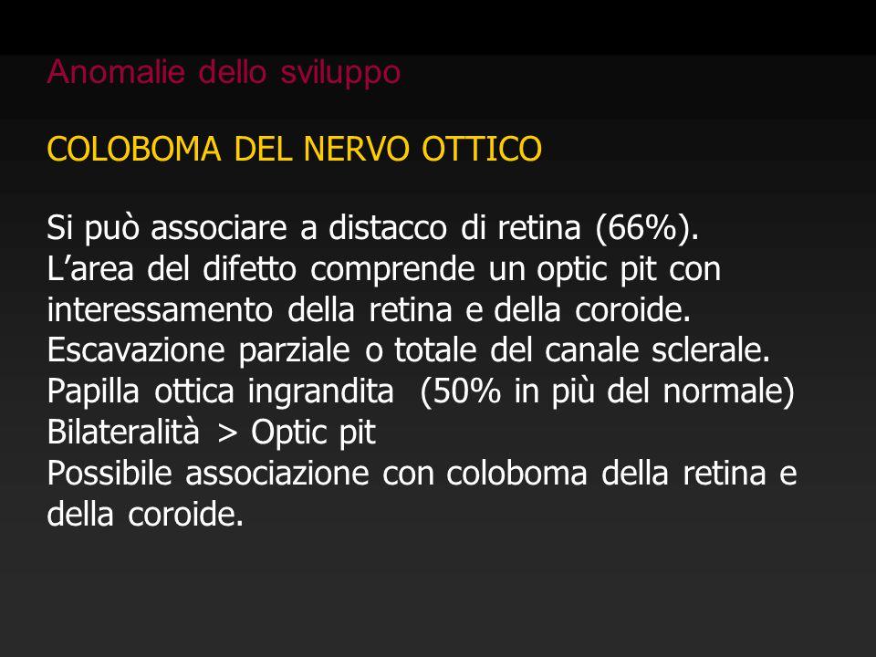 COLOBOMA DEL NERVO OTTICO Si può associare a distacco di retina (66%). L'area del difetto comprende un optic pit con interessamento della retina e del