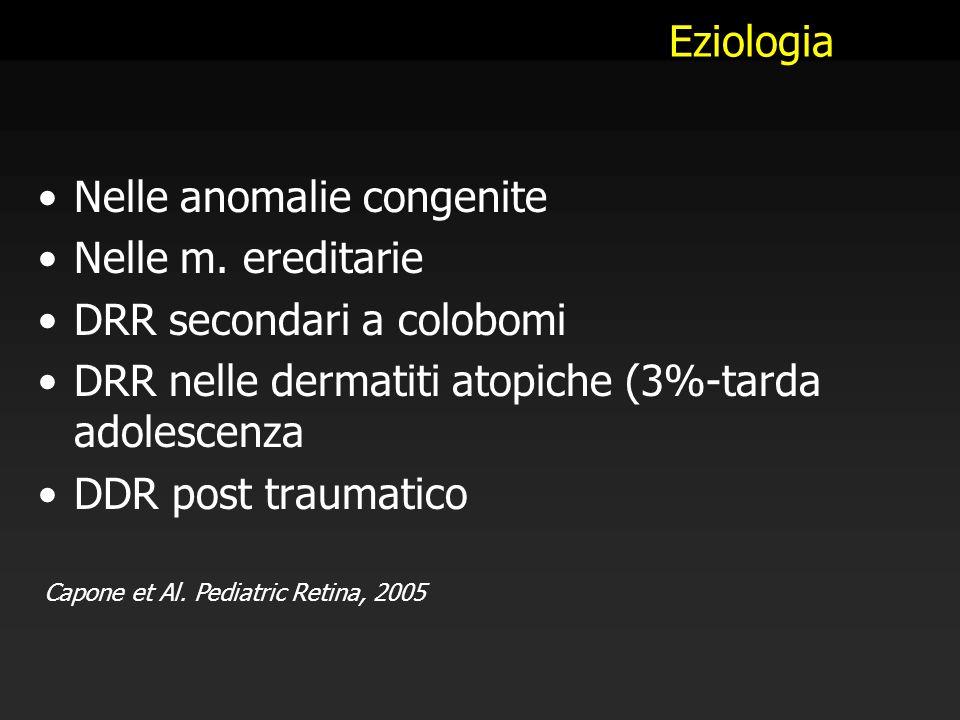 Eziologia Nelle anomalie congenite Nelle m. ereditarie DRR secondari a colobomi DRR nelle dermatiti atopiche (3%-tarda adolescenza DDR post traumatico