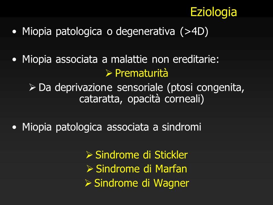 Eziologia Miopia patologica o degenerativa (>4D) Miopia associata a malattie non ereditarie:  Prematurità  Da deprivazione sensoriale (ptosi congeni