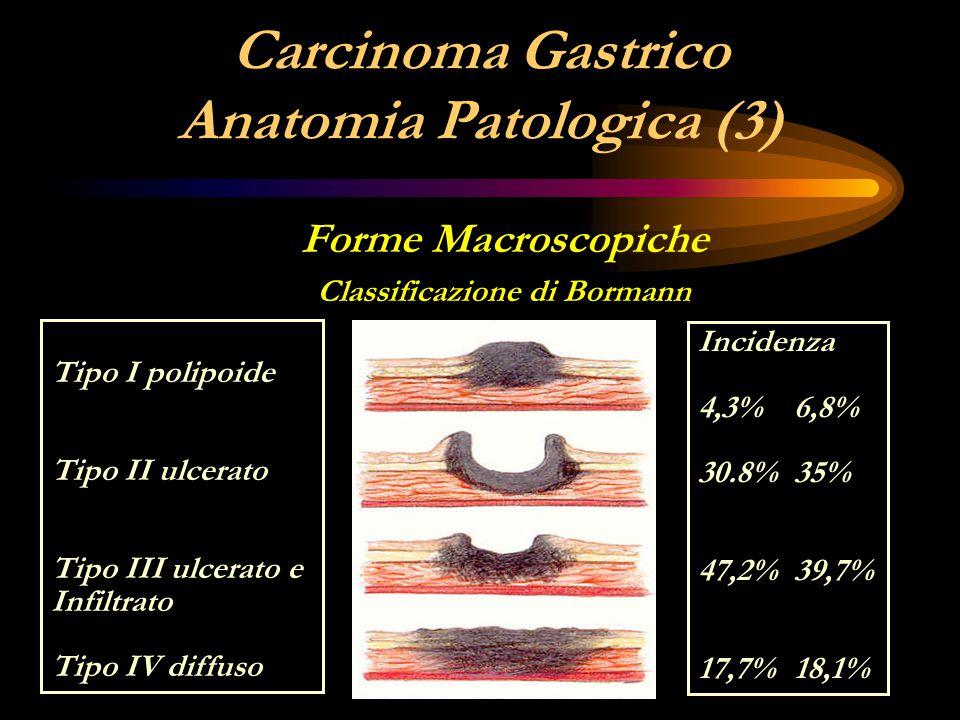 Carcinoma Gastrico Anatomia Patologica (3) Forme Macroscopiche Classificazione di Bormann Tipo I polipoide Tipo II ulcerato Tipo III ulcerato e Infilt