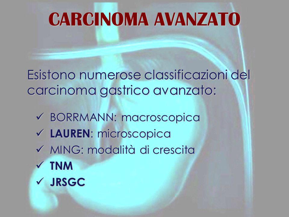CARCINOMA AVANZATO Esistono numerose classificazioni del carcinoma gastrico avanzato: BORRMANN: macroscopica BORRMANN: macroscopica LAUREN : microscop