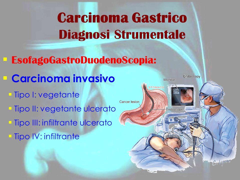  EsofagoGastroDuodenoScopia:  Carcinoma invasivo  Tipo I: vegetante  Tipo II: vegetante ulcerato  Tipo III: infiltrante ulcerato  Tipo IV: infil