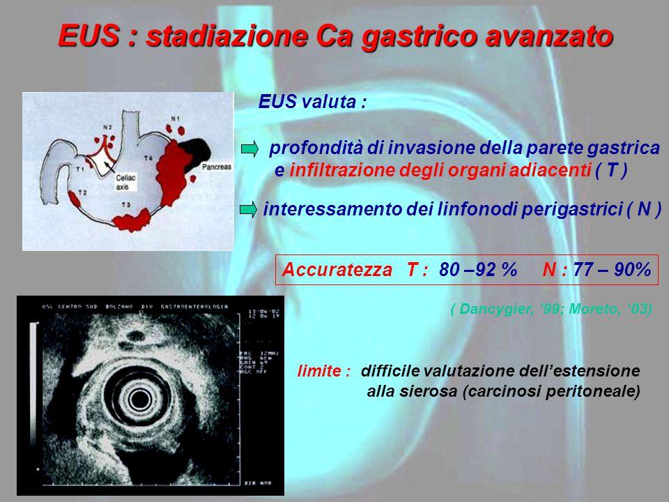 EUS : stadiazione Ca gastrico avanzato EUS valuta : profondità di invasione della parete gastrica e infiltrazione degli organi adiacenti ( T ) interes