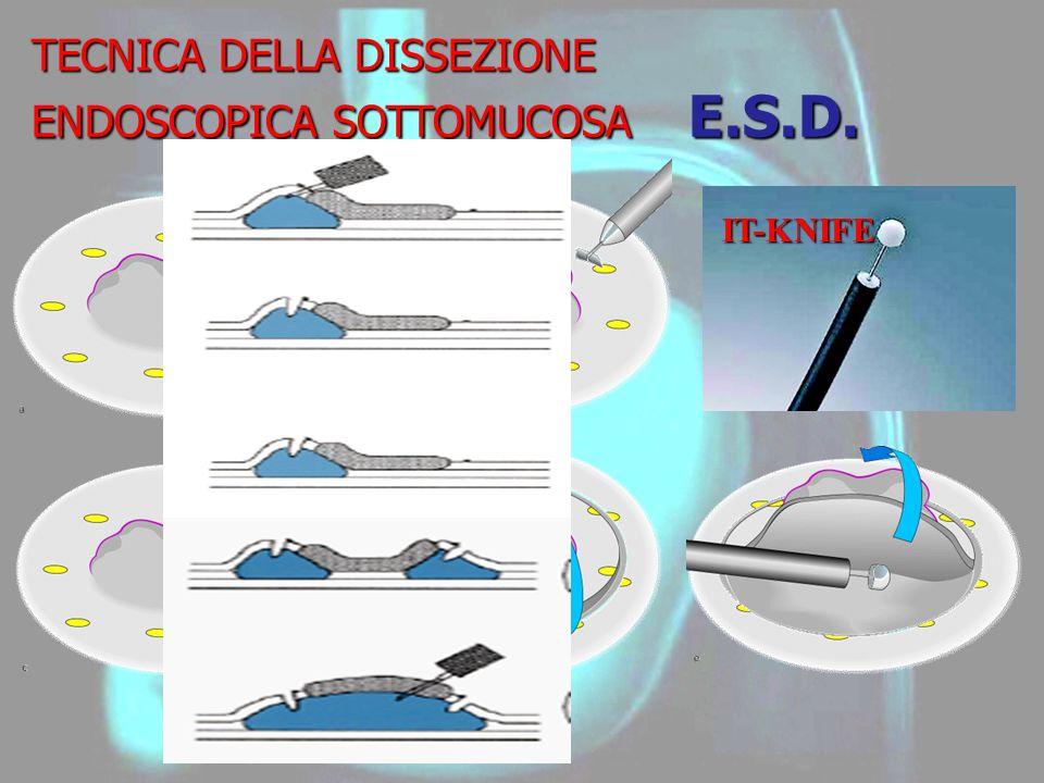 TECNICA DELLA DISSEZIONE ENDOSCOPICA SOTTOMUCOSA E.S.D. IT-KNIFE