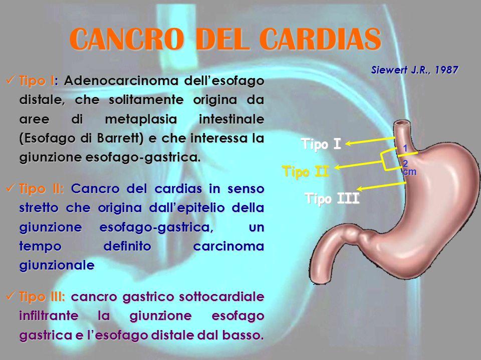 CANCRO DEL CARDIAS Tipo I: Adenocarcinoma dell'esofago distale, che solitamente origina da aree di metaplasia intestinale (Esofago di Barrett) e che i