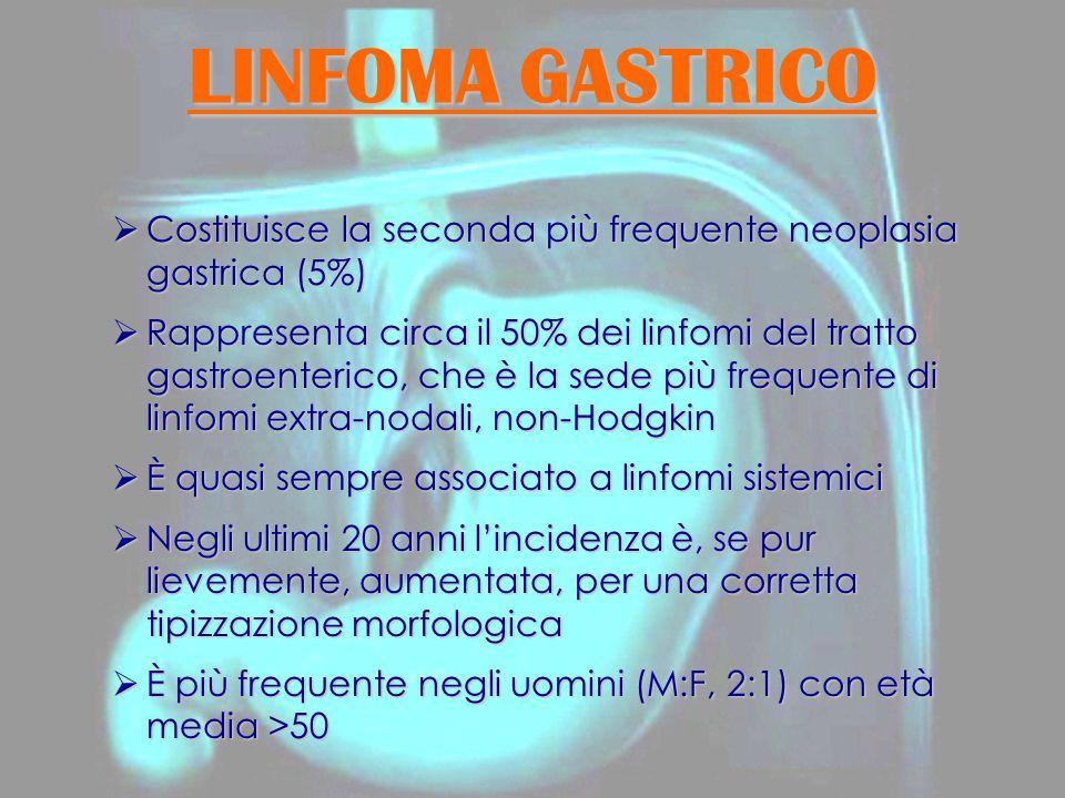 LINFOMA GASTRICO  Costituisce la seconda più frequente neoplasia gastrica (5%)  Rappresenta circa il 50% dei linfomi del tratto gastroenterico, che