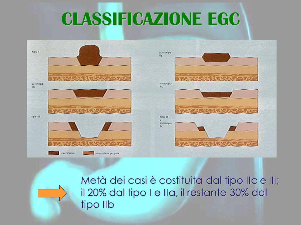 CLASSIFICAZIONE EGC Metà dei casi è costituita dal tipo IIc e III; il 20% dal tipo I e IIa, il restante 30% dal tipo IIb