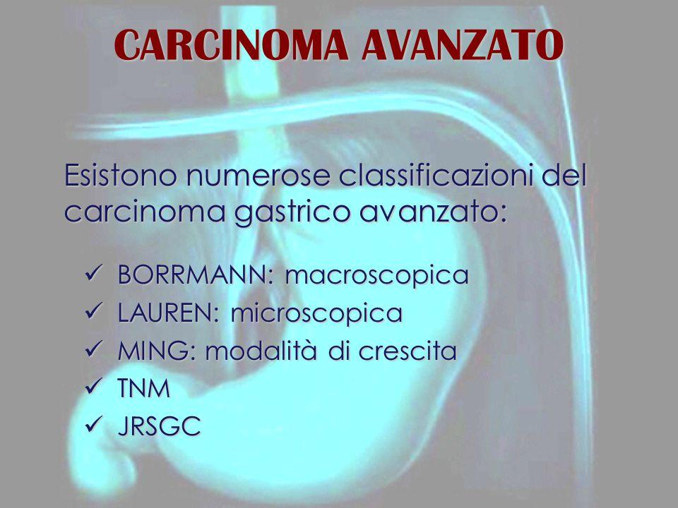 CARCINOMA AVANZATO Esistono numerose classificazioni del carcinoma gastrico avanzato: BORRMANN: macroscopica BORRMANN: macroscopica LAUREN: microscopica LAUREN: microscopica MING: modalità di crescita MING: modalità di crescita TNM TNM JRSGC JRSGC