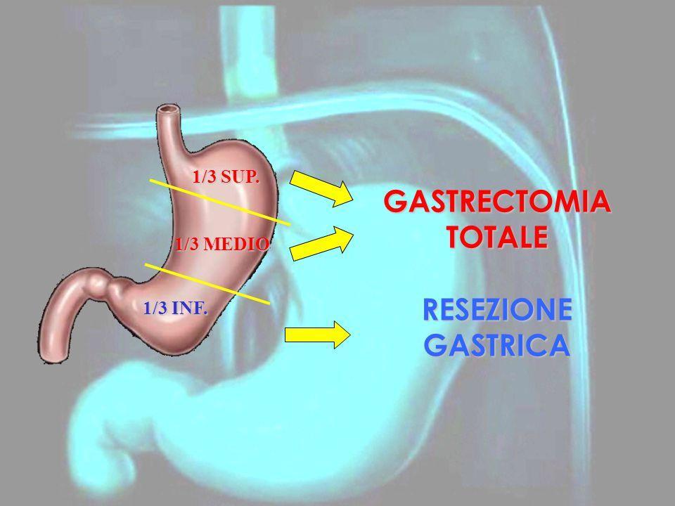 1/3 SUP. 1/3 INF. 1/3 MEDIO GASTRECTOMIA TOTALE RESEZIONE GASTRICA