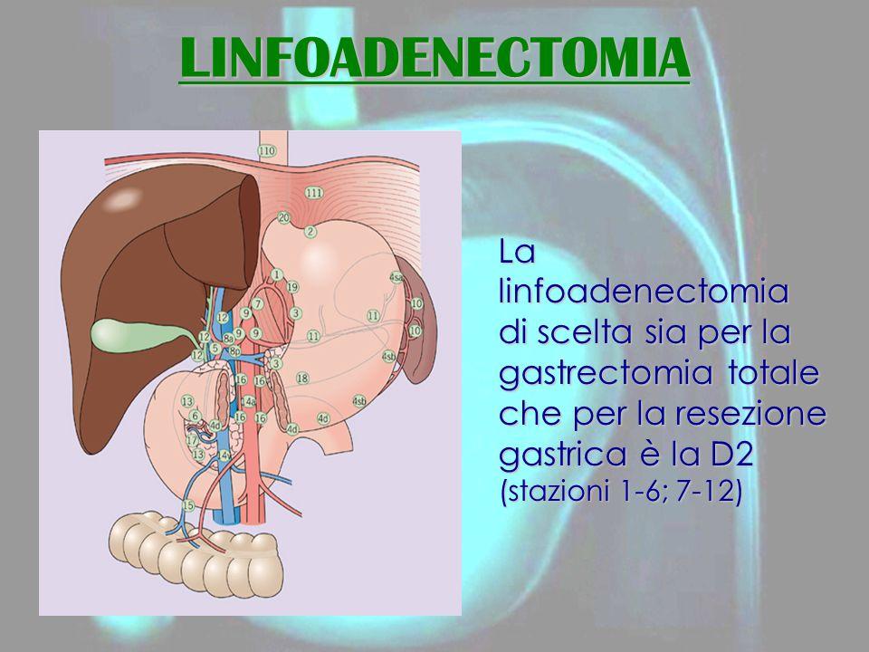 LINFOADENECTOMIA La linfoadenectomia di scelta sia per la gastrectomia totale che per la resezione gastrica è la D2 (stazioni 1-6; 7-12)