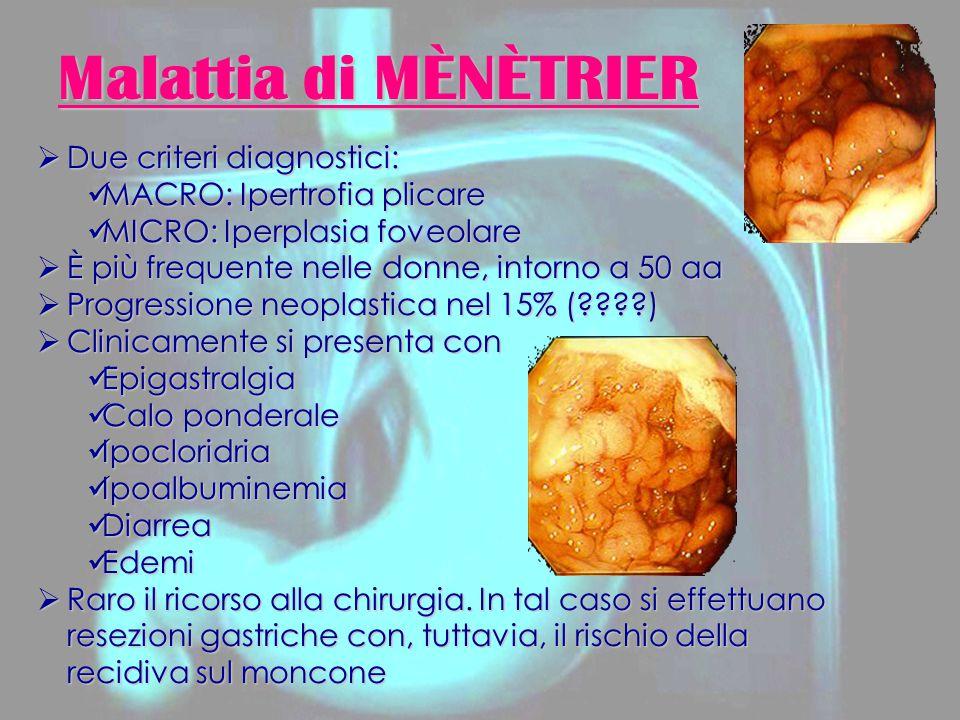 Carcinoma Gastrico RadioTerapia ë Ca.
