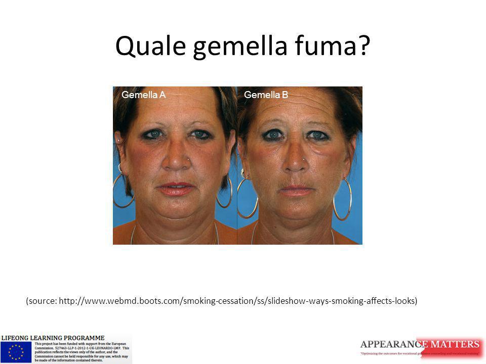 Quale gemella fuma? (source: http://www.webmd.boots.com/smoking-cessation/ss/slideshow-ways-smoking-affects-looks) Gemella AGemella B Gemella AGemella