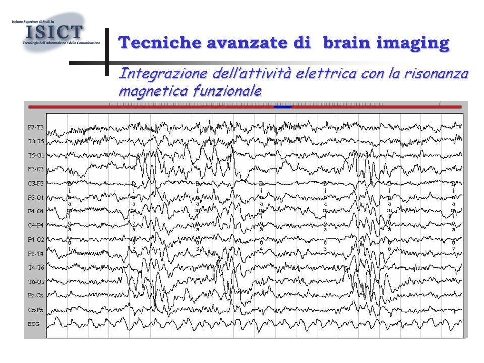 Tecniche avanzate di brain imaging Integrazione dell'attività elettrica con la risonanza magnetica funzionale