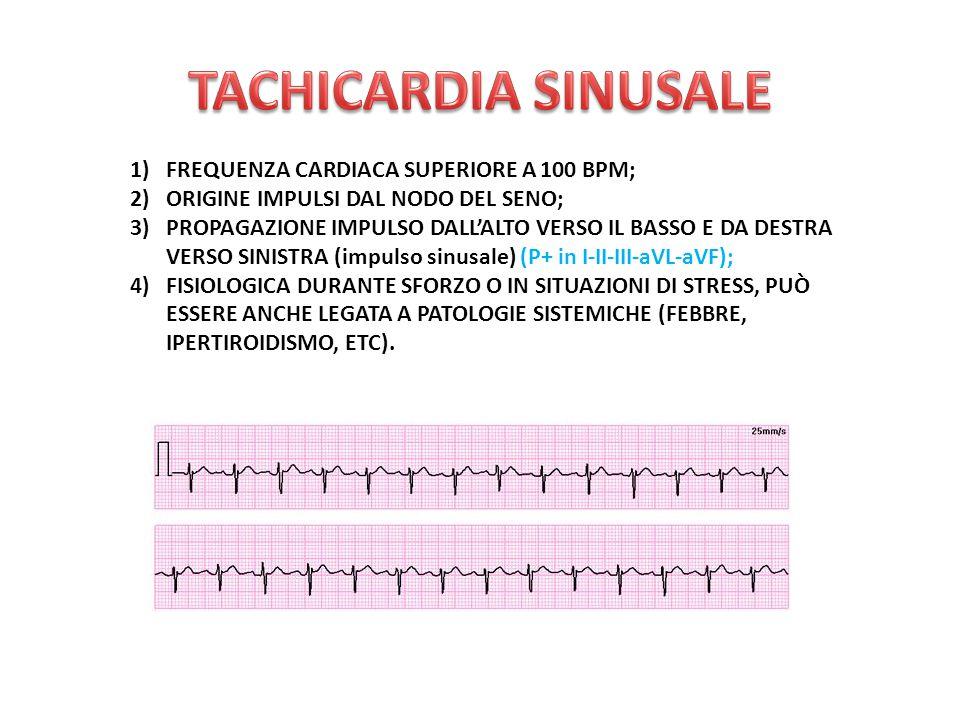 1)FREQUENZA CARDIACA SUPERIORE A 100 BPM; 2)ORIGINE IMPULSI DAL NODO DEL SENO; 3)PROPAGAZIONE IMPULSO DALL'ALTO VERSO IL BASSO E DA DESTRA VERSO SINISTRA (impulso sinusale) (P+ in I-II-III-aVL-aVF); 4)FISIOLOGICA DURANTE SFORZO O IN SITUAZIONI DI STRESS, PUÒ ESSERE ANCHE LEGATA A PATOLOGIE SISTEMICHE (FEBBRE, IPERTIROIDISMO, ETC).