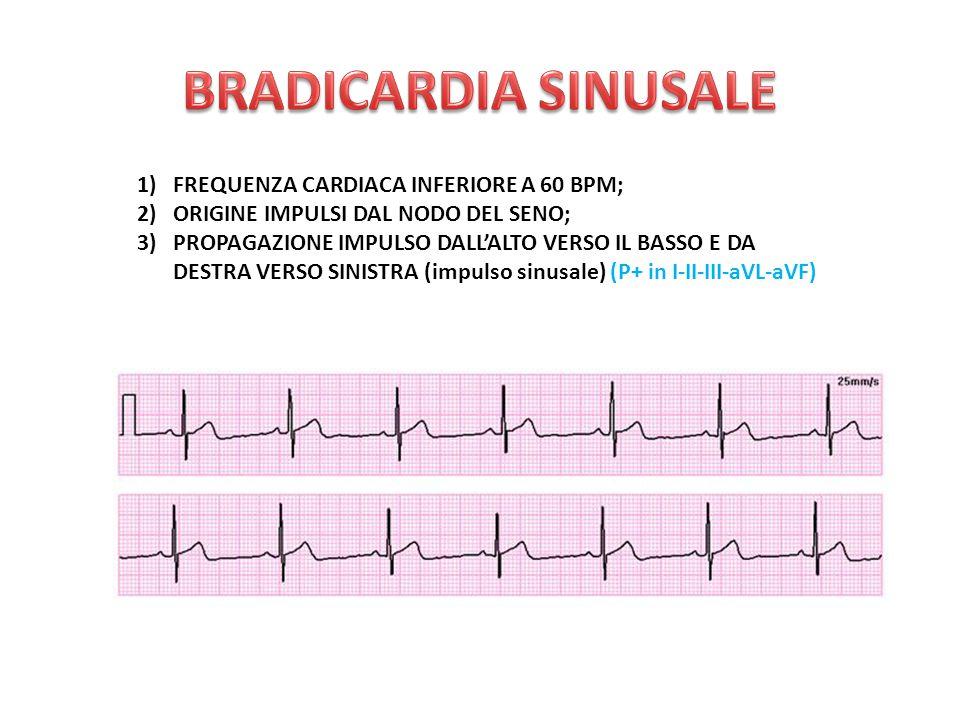 1)FREQUENZA CARDIACA INFERIORE A 60 BPM; 2)ORIGINE IMPULSI DAL NODO DEL SENO; 3)PROPAGAZIONE IMPULSO DALL'ALTO VERSO IL BASSO E DA DESTRA VERSO SINISTRA (impulso sinusale) (P+ in I-II-III-aVL-aVF)