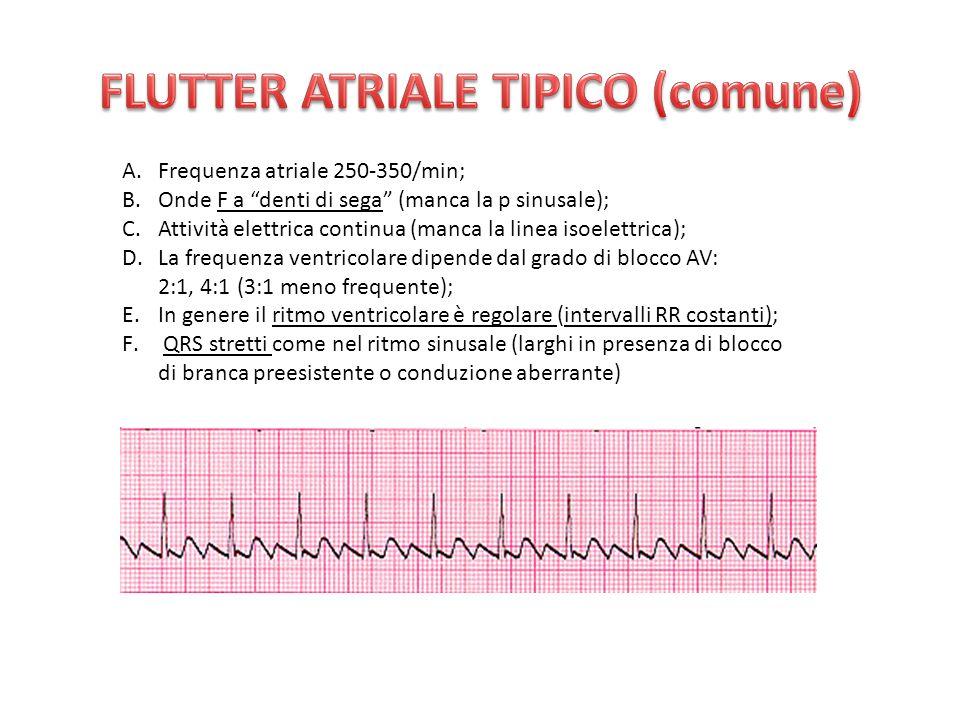 A.Frequenza atriale 250-350/min; B.Onde F a denti di sega (manca la p sinusale); C.Attività elettrica continua (manca la linea isoelettrica); D.La frequenza ventricolare dipende dal grado di blocco AV: 2:1, 4:1 (3:1 meno frequente); E.In genere il ritmo ventricolare è regolare (intervalli RR costanti); F.