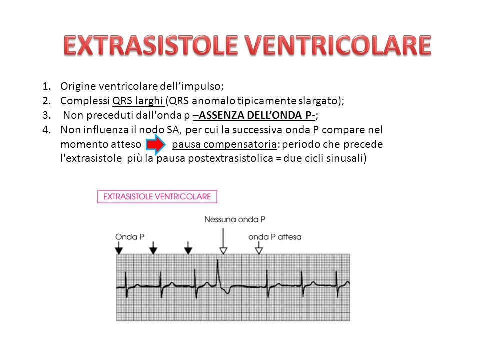 1.Origine ventricolare dell'impulso; 2.Complessi QRS larghi (QRS anomalo tipicamente slargato); 3. Non preceduti dall'onda p –ASSENZA DELL'ONDA P-; 4.