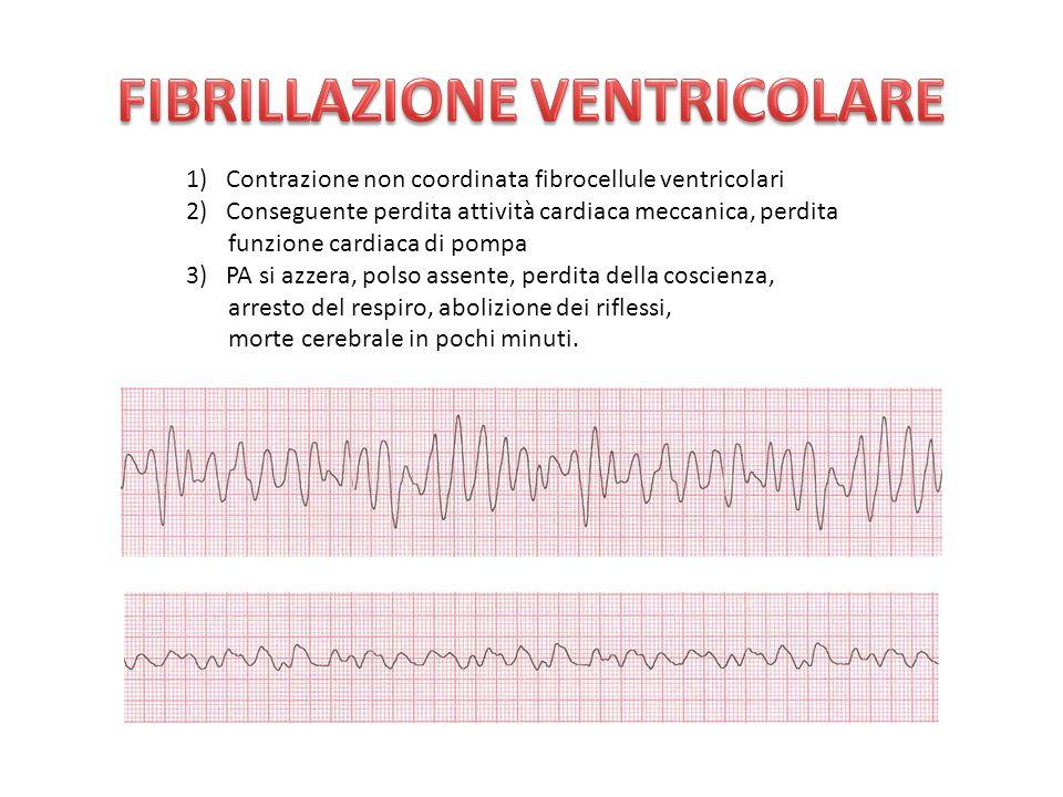 1)Contrazione non coordinata fibrocellule ventricolari 2)Conseguente perdita attività cardiaca meccanica, perdita funzione cardiaca di pompa 3)PA si azzera, polso assente, perdita della coscienza, arresto del respiro, abolizione dei riflessi, morte cerebrale in pochi minuti.