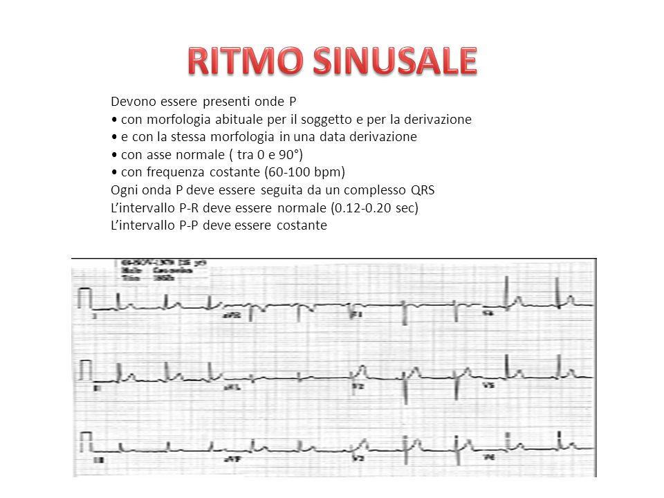 1.Origine ventricolare dell'impulso; 2.Complessi QRS larghi (QRS anomalo tipicamente slargato); 3.