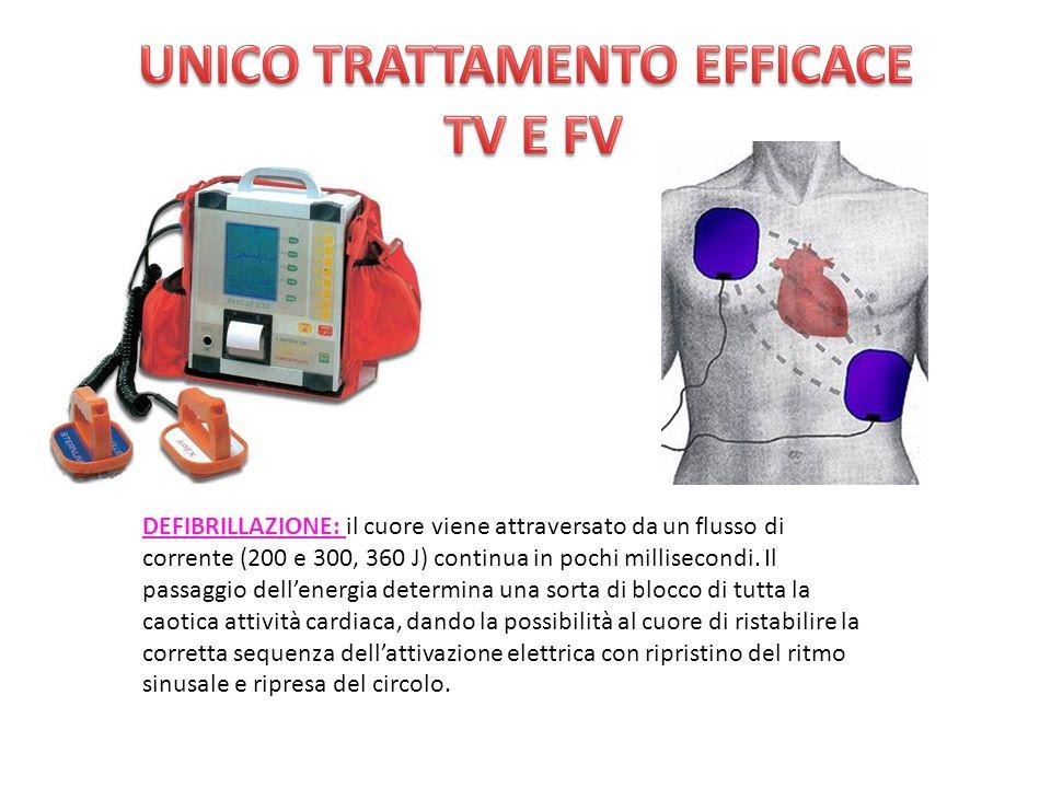DEFIBRILLAZIONE: il cuore viene attraversato da un flusso di corrente (200 e 300, 360 J) continua in pochi millisecondi.