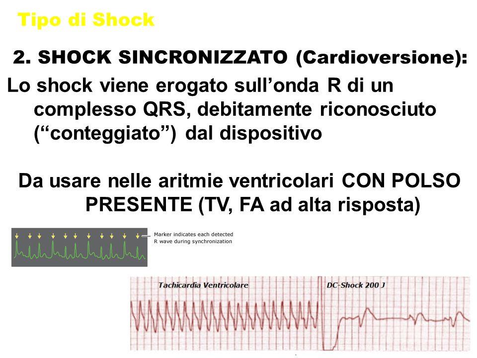 """Tipo di Shock 2. SHOCK SINCRONIZZATO (Cardioversione): Lo shock viene erogato sull'onda R di un complesso QRS, debitamente riconosciuto (""""conteggiato"""""""