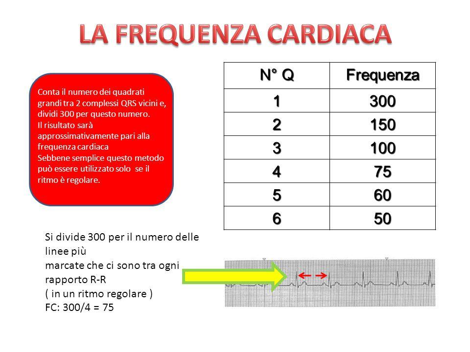 N° Q Frequenza1300 2150 3100 475 560 650 Conta il numero dei quadrati grandi tra 2 complessi QRS vicini e, dividi 300 per questo numero. Il risultato