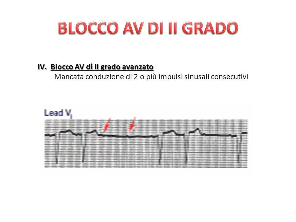 IV.Blocco AV di II grado avanzato Mancata conduzione di 2 o più impulsi sinusali consecutivi