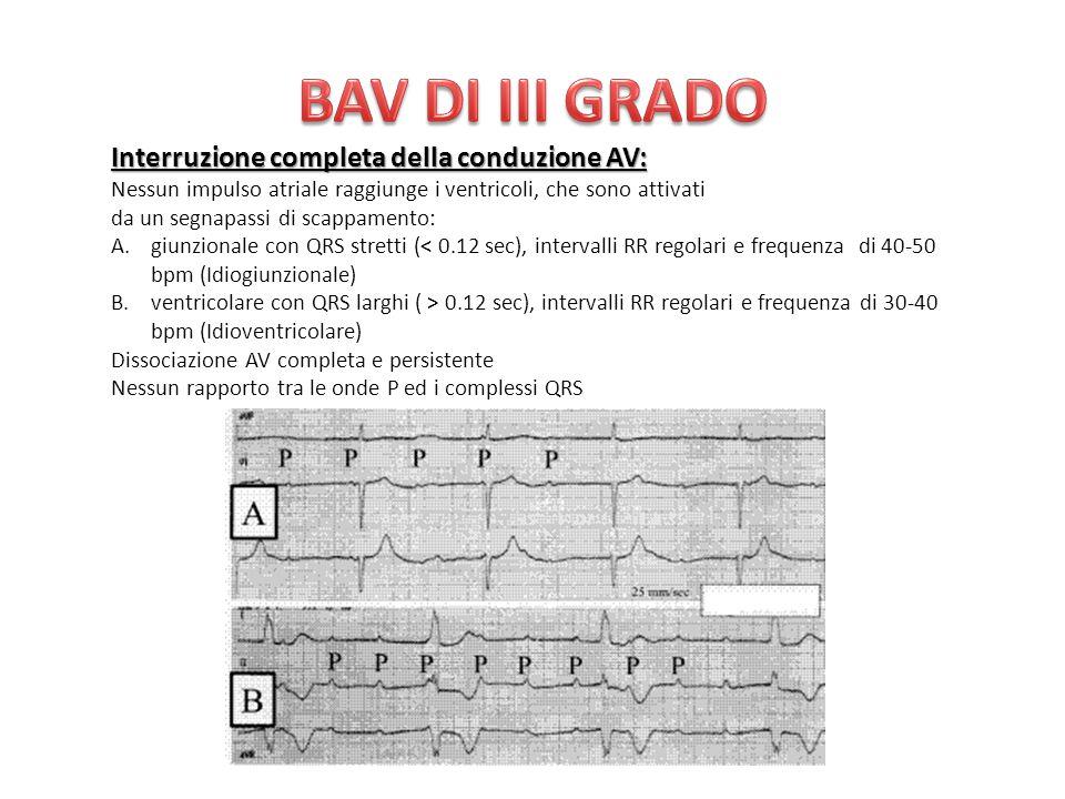 Interruzione completa della conduzione AV: Nessun impulso atriale raggiunge i ventricoli, che sono attivati da un segnapassi di scappamento: A.giunzionale con QRS stretti (< 0.12 sec), intervalli RR regolari e frequenza di 40-50 bpm (Idiogiunzionale) B.ventricolare con QRS larghi ( > 0.12 sec), intervalli RR regolari e frequenza di 30-40 bpm (Idioventricolare) Dissociazione AV completa e persistente Nessun rapporto tra le onde P ed i complessi QRS