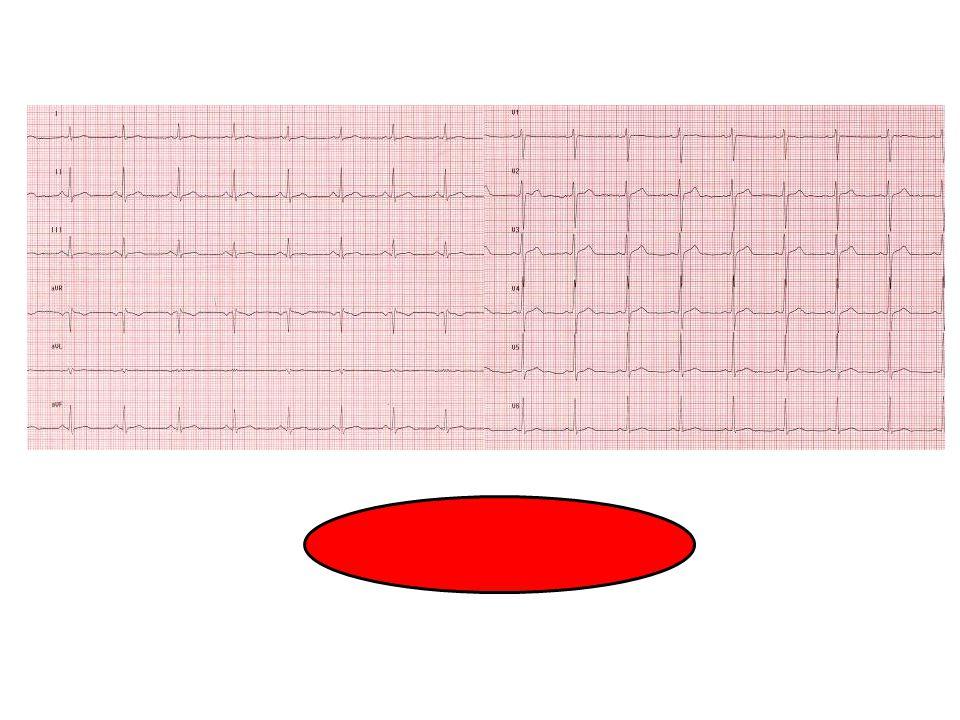 Ritmo sinusale:ECG normale.