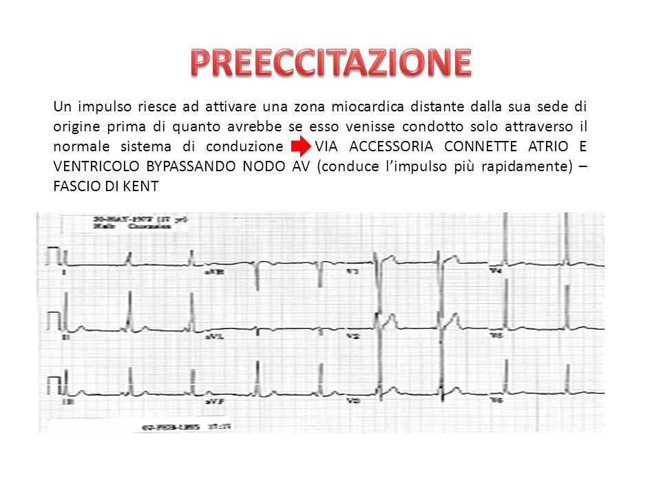 Un impulso riesce ad attivare una zona miocardica distante dalla sua sede di origine prima di quanto avrebbe se esso venisse condotto solo attraverso