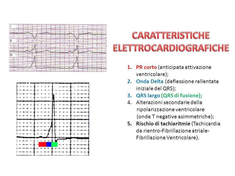 1.PR corto (anticipata attivazione ventricolare); 2.Onda Delta (deflessione rallentata iniziale del QRS); 3.QRS largo (QRS di fusione); 4.Alterazioni secondarie della ripolarizzazione ventricolare (onde T negative asimmetriche); 5.Rischio di tachiaritmie (Tachicardia da rientro-Fibrillazione atriale- Fibrillazione Ventricolare).