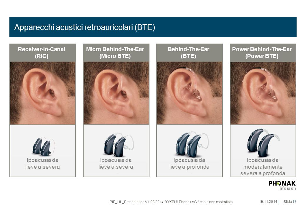Apparecchi acustici retroauricolari (BTE) 19.11.2014Slide 17 PIP_HL_Presentation V1.00/2014-03/XPl © Phonak AG / copia non controllata Ipoacusia da lieve a severa Ipoacusia da lieve a profonda Ipoacusia da lieve a severa Ipoacusia da moderatamente severa a profonda Receiver-In-Canal (RIC) Micro Behind-The-Ear (Micro BTE) Behind-The-Ear (BTE) Power Behind-The-Ear (Power BTE)