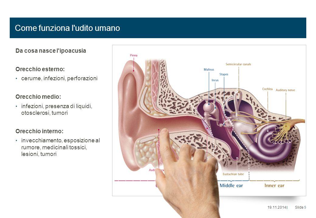 Come funziona l'udito umano Da cosa nasce l'ipoacusia Orecchio esterno: cerume, infezioni, perforazioni Orecchio medio: infezioni, presenza di liquidi