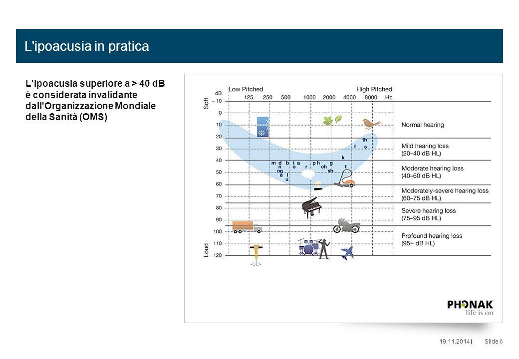 L ipoacusia in pratica L ipoacusia superiore a > 40 dB è considerata invalidante dall Organizzazione Mondiale della Sanità (OMS) 19.11.2014Slide 6