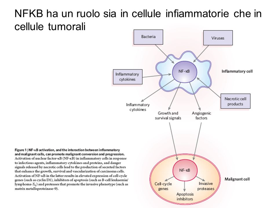 NFKB ha un ruolo sia in cellule infiammatorie che in cellule tumorali