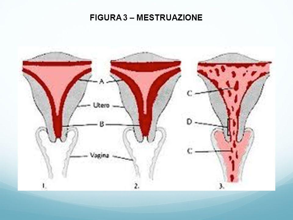 2.2. 2. Forma rara e strana di endometriosi: endometriosi pleurica.