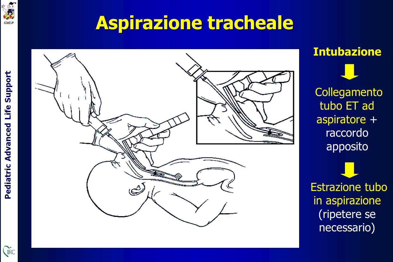 Pediatric Advanced Life Support Aspirazione tracheale Intubazione Collegamento tubo ET ad aspiratore + raccordo apposito Estrazione tubo in aspirazione (ripetere se necessario)