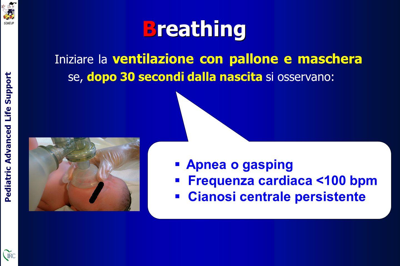 Pediatric Advanced Life Support Iniziare la ventilazione con pallone e maschera se, dopo 30 secondi dalla nascita si osservano: Breathing  Apnea o gasping  Frequenza cardiaca <100 bpm  Cianosi centrale persistente