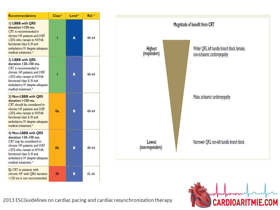 2013 ESCGuidelines on cardiac pacing and cardiac resynchronization therapy